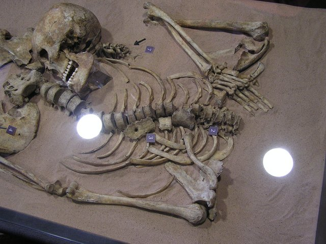 Upper half of skeleton with skull by pelvis
