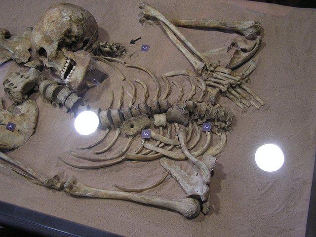 Upper half of skeleton with skull by pelvis
