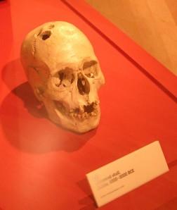 Trephined skull